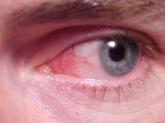 Конъюнктивит при орви симптомы