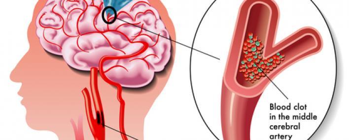 Первые симптомы и признаки инсульта у мужчин